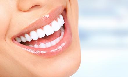 Pulizia denti e sbiancamento led a 44,90€euro