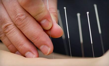 Initial Consulation and 1 Acupuncture Treatment (a $110 value) - HealthFocus Acupuncture and Oriental Medicine in Glen Allen