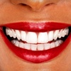 Up to 86% Off at Spring Creek Dentistry in Spring