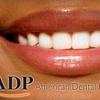 85% Off at American Dental Professionals