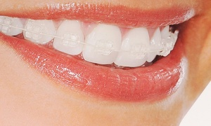 VidaDent: Clear Braces for One or Both Arches with Fixed Retainers at VidaDent (Up to 74% Off)