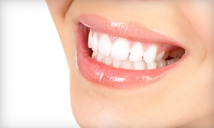 Hospital Dental Group - South Green: $100 for a Dental Exam and Take-Home Whitening Kit at Hospital Dental Group ($350 Value)