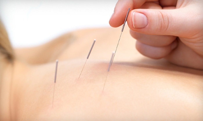 CT Acupuncture Center - Multiple Locations: One-Hour Acupuncture or Reiki Session at CT Acupuncture Center (74% Off)