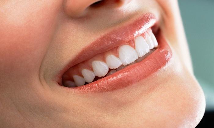 Pulizia dei denti completa, otturazione e sbiancamento led più prevenzione carie per bambino (sconto fino a 90%)