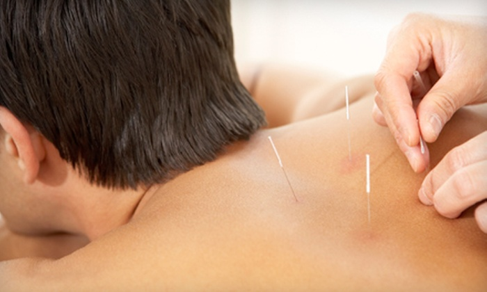 Abundant Health Acupuncture - Madison: $70 for Two Acupuncture Treatments and an Initial Consultation at Abundant Health Acupuncture ($215 Value)