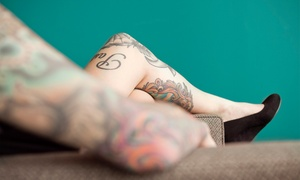 PacesLaserMD: Laser Tattoo or Birthmark Removal for a 4-, 6-, or 8-Square-Inch Area at PacesLaserMD (Up to 69% Off)