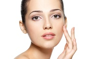 IPL Thread Vein Treatment on One or Three Facial Areas at Saltash Aesthetics (Up to 66% Off)