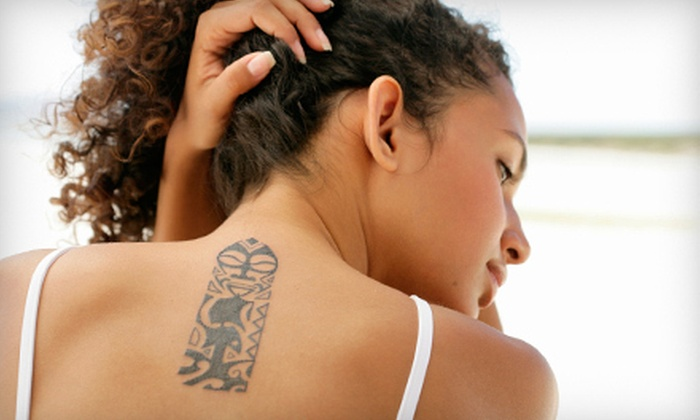 """Laser Bella - Tucson: Three or Six Laser Tattoo-Removal Sessions on an up to 4""""x4"""" or 8""""x8"""" Area at Laser Bella (Up to 83% Off)"""