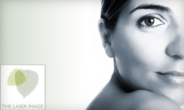 The Laser Image - Encino: $150 for Two Laser Vein Removal Treatments at The Laser Image