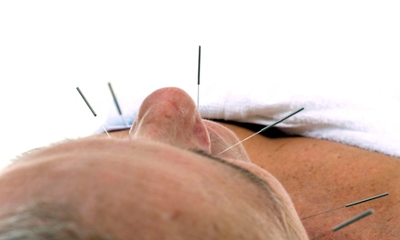 One, Three, or Five Regular or No-Needle Acupuncture Treatments at Natural Health Chiropractic (Up to 64% Off)