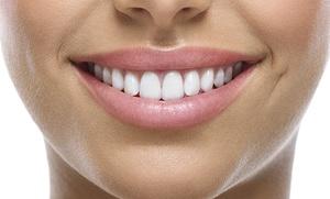 1 o 2 sesiones de blanqueamiento dental LED y limpieza bucal con ultrasonidos desde 59 €