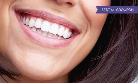Limpieza bucal con opción a 1, 2, 4 o 6 empastes desde 9,90 € en 2 centros Integral Odonto