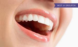 Studio Dr. Grechi Aldo: Pulizia denti, otturazione, sbiancamento led e gioiello dentale in centro a Lecco (sconto fino a 83%)