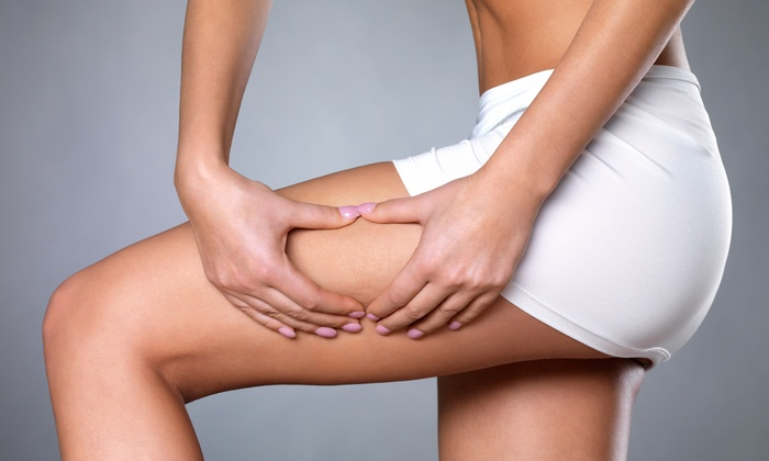 The Body Sculpting Spa - Moreno Valley: $75 for $150 Worth of Body Contouring — The Body Sculpting Spa