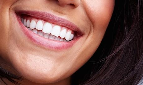 Paga 150 € por un descuento de 1000 € para una ortodoncia Invisalign en dos centros de Clínica dental Landete