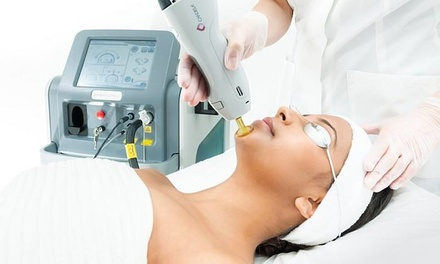 Four Laser Hair Removal Sessions on Two $99, Three $129 or Four Areas $149 at Banu Beauty Laser Up to $512 Value