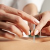 67% Off Acupuncture