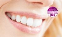 レーザー技術で、憧れの白い歯へ≪レーザーホワイトニング(上下16本)+PMTCクリーニング/1回分 or 2回分 or 3回分≫土曜も診...