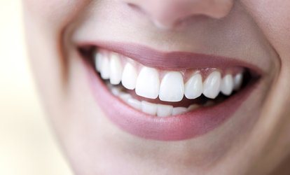 image for Dental Scale and Polish, Laser Teeth Whitening or Both Treatments at Elite Style Polyclinic*