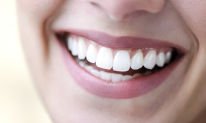 Elite Style Polyclinic: Dental Scale and Polish, Laser Teeth Whitening or Both Treatments at Elite Style Polyclinic*