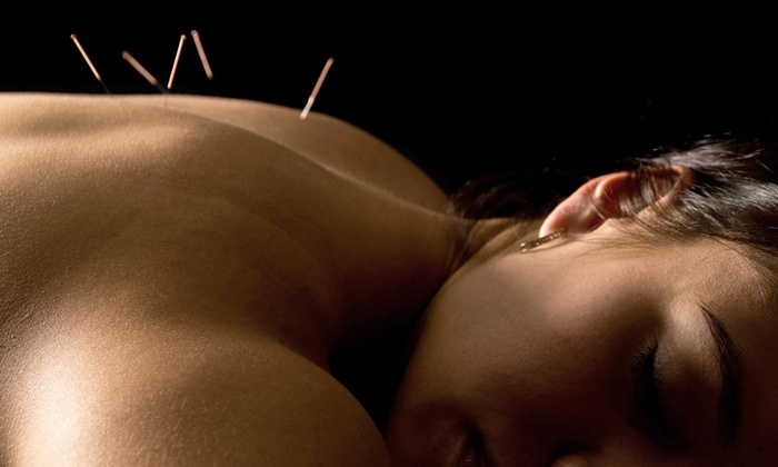 Dow Chiropractic and Acupuncture - Maple Bluff: Acupuncture Treatments and Massage at Dow Chiropractic and Acupuncture (Up to 64% Off). Four Options Available.