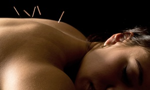 Dow Chiropractic and Acupuncture: Acupuncture Treatments and Massage at Dow Chiropractic and Acupuncture (Up to 64% Off). Four Options Available.