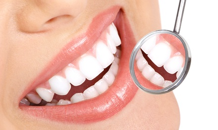 $25 for Dental Exam & Two X Rays, $69 to add Scale and Polish, $179 to add 2 fillings at Point Chevalier Family Dentist
