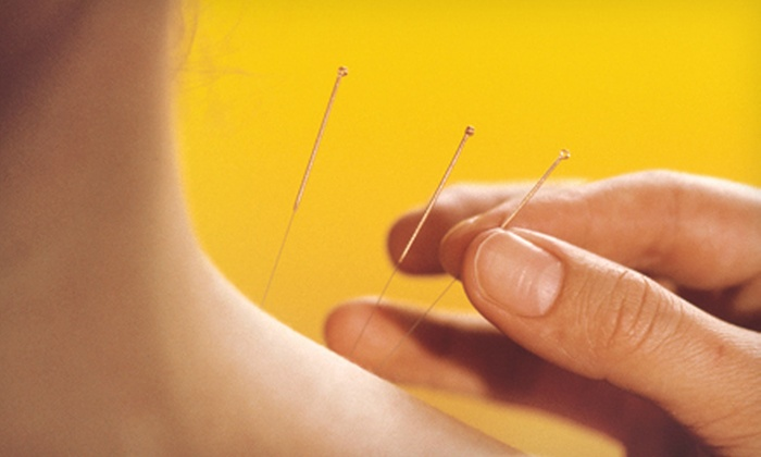 HealthPro Chiropractic & Acupuncture - Cypresswood At Cutten: One, Three, or Five Acupuncture Sessions at HealthPro Chiropractic & Acupuncture (Up to 66% Off)