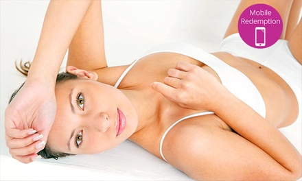 Four IPL Sessions on a Small ($59), Large ($129) or Extra Large Area ($159) at Supreme Medi Spa (Up to $1,600 Value)