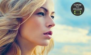 Naruna Medicina Estética: Naruna Medicina Estética – Betim: 1 ou 3 visitas com limpeza de pele, peeling de diamante e rejuvenescimento facial