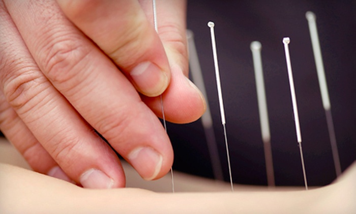Leamington TCM Center - Leamington: One Acupuncture Treatment with AcuGraph or Three Acupuncture Treatments at Leamington TCM Center (Up to 70% Off)