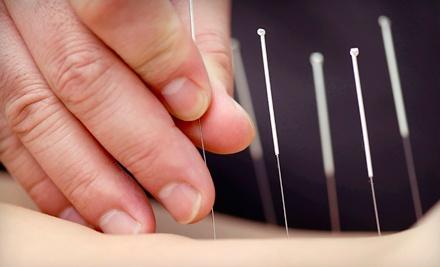 1 Acupuncture Treatment (a $50 value) - Leamington TCM Center in Leamington