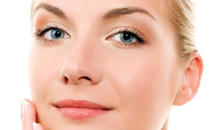 One or Three Glycolic Facials with Microdermabrasion Treatments at Goldfingers Skin Care (Up to 64% Off)