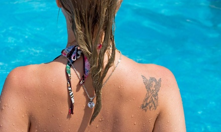 Up to 84% Off Tattoo Removal Sessions at Windfall Spa & Oasis