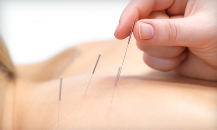 Good Medicine Community Acupuncture - Villas: Two or Four Acupuncture Sessions with Initial Consultation at Good Medicine Community Acupuncture (Up to 51% Off)