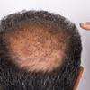 58% Off Hair Restoration - Other