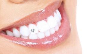 Rose Dental Clinic: Choice of Dental Treatment at Rose Dental Clinic*