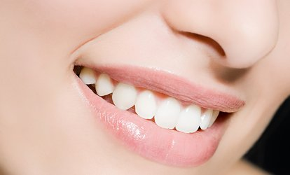 $39 for Exam, Cleaning, and X-Ray at Sofia Smiles <strong>Dental</strong> ($329 Value)