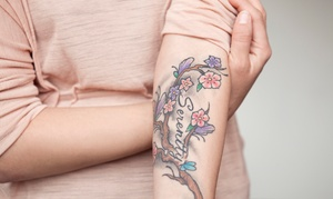 Laser Touch Aesthetics: Three Laser Tattoo-Removal Treatments at LaserTouch Aesthetics (Up to 69% Off). Three Options Available.