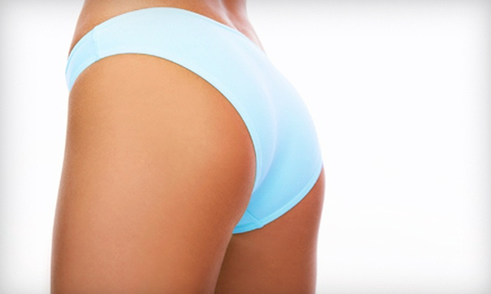 City Chic - East Louisville: Two, Four, or Six CelluSleek Body-Contouring Treatments at City Chic (Up to 68% Off)