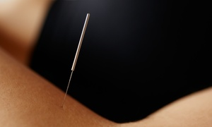 Good Point Acupuncture: Three Acupuncture Treatments at Good Point Acupuncture (65% Off)