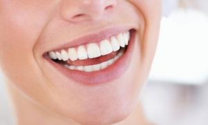 Cryo Smile: 1x oder 2x 25 oder 45 Min. kosmetisches Zahnbleaching für 1 Person bei Cryo Smile (bis zu 62% sparen*)