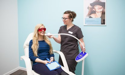 $78.50 for an In-Office <strong>Teeth-Whitening</strong> Treatment at BodyBrite ($129 Value)