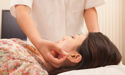 One or Two 60-Minute Acupuncture Sessions with Consultation and Cupping at Lumos Acupuncture (Up to 65% Off)