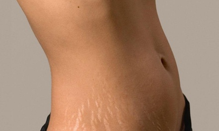 One or Three Microneedling Treatment for Stretch Marks or Scarring on One Area at JLJ MedSpa (Up to 80% Off)