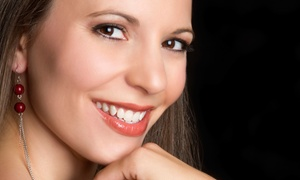 Kaz Advanced Dentistry: Custom Teeth-Whitening Trays for Day or Night Use at Kaz Advanced Dentistry (Up to $325 Value)