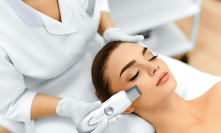 One Microdermabrasion Facial, Valid Monday–Sunday at Young Skin Care & Spa (Up to 51% Off)