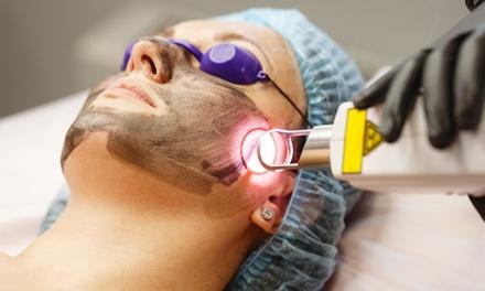 1 sesión de tratamiento facial black peeling para 1 persona por 225 € en European Advance Medicine Hospital
