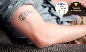 Emporium da Beleza - Balneário Camboriú: Emporium da Beleza – Centro: 1, 3 ou 5 sessões de remoção de tatuagem a laser