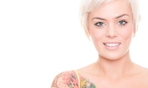 West Palm Beach Tattoo Removal - Deals in West Palm Beach, FL | Groupon